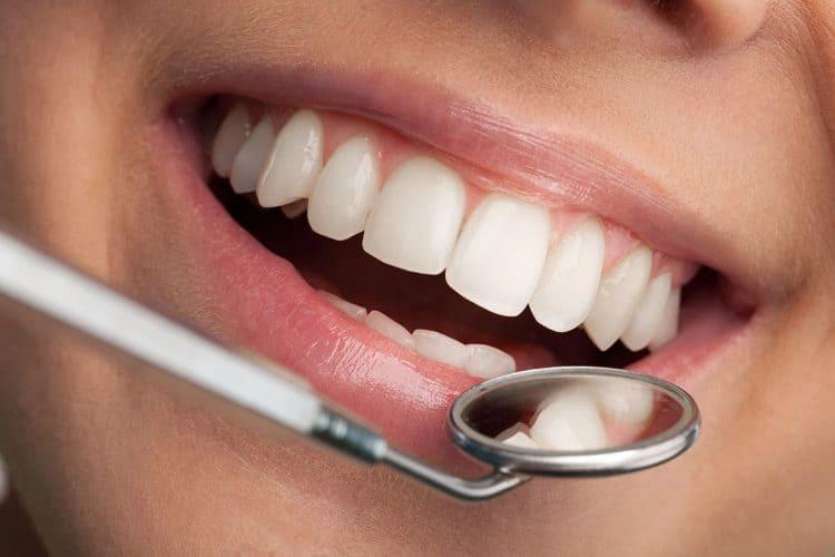 Checkup & Clean at Garran Dental