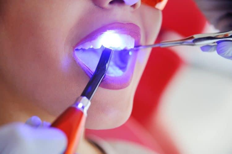 whiten your dental implant
