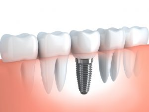 Picture of a fitted permanent dental implant