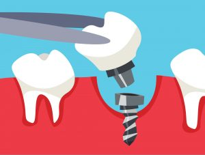 dental implant becoming loose