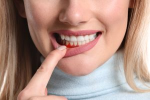 showing signs of periodontal disease