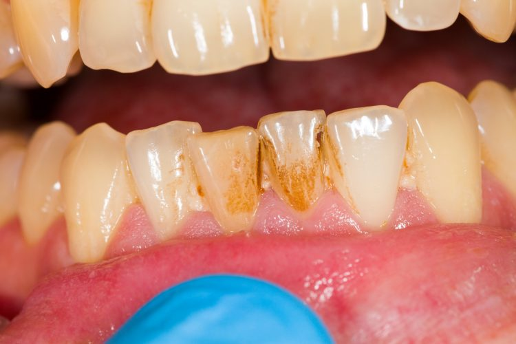 an image of dental plaque on teeth